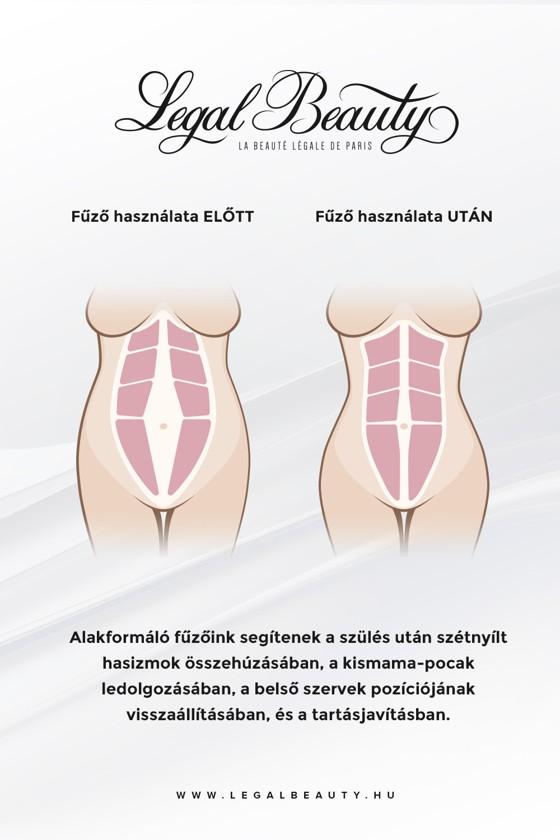 New York - Cipzáros alakformáló fűzős mellény - Nude (testszínű) - XXS